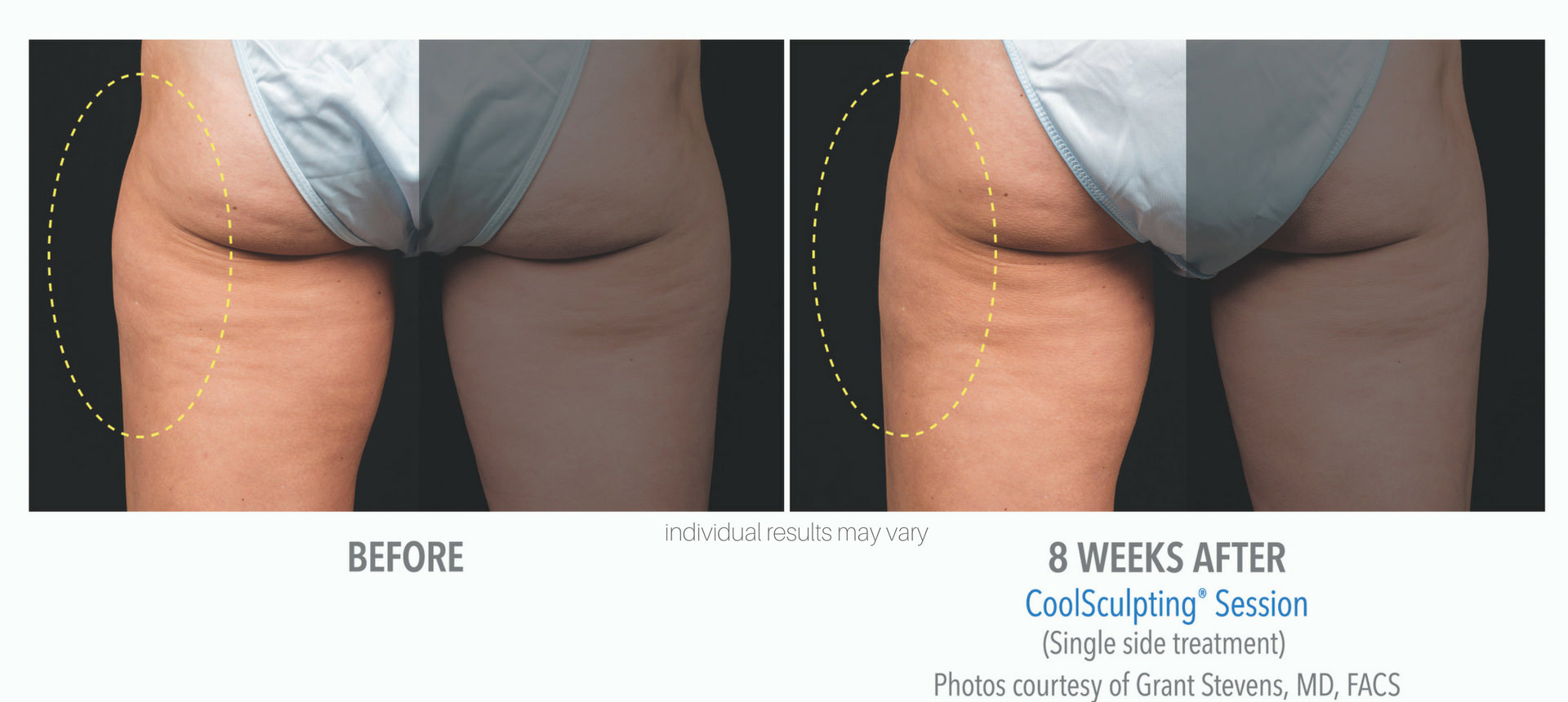 coolsculpting-before-and-after-photos-5