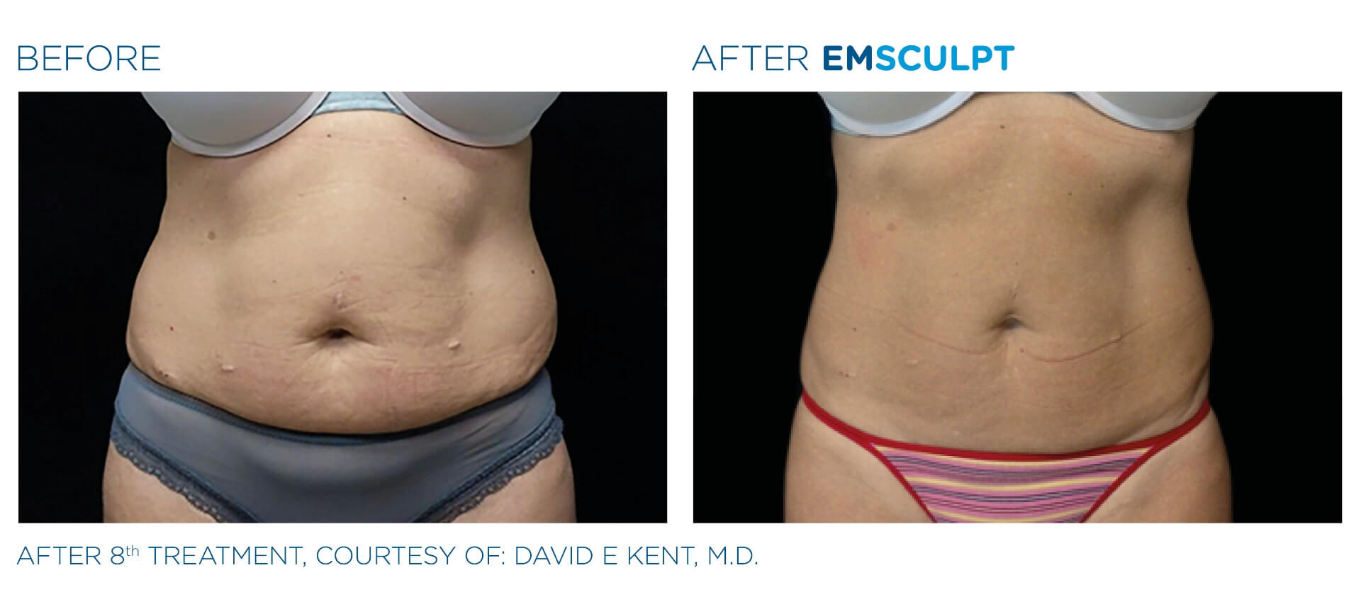 emsculpt-before-and-after-3