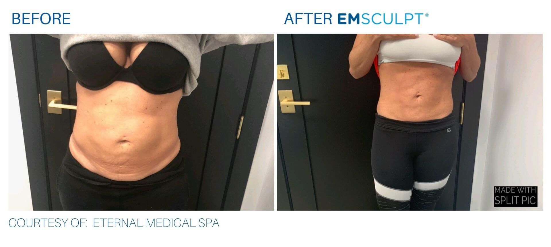 EmSculpt before and after Eternal Medical Spa