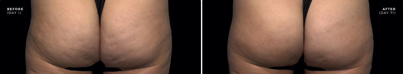 QWO cellulite treatment before and after image in Totowa, NJ